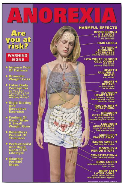 Anorexia Signs
